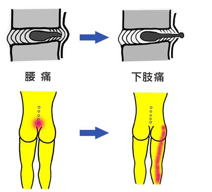 腰痛から下肢痛へ