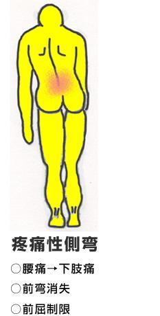 疼痛性側弯