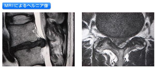 MRIヘルニア