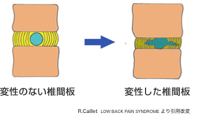椎間板が変性