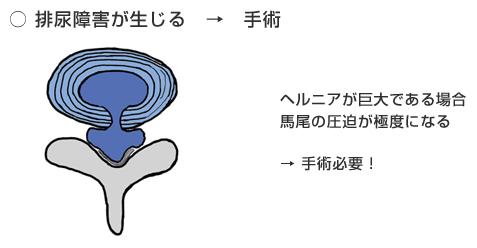 脊柱管の広いヘルニアと狭いヘルニア