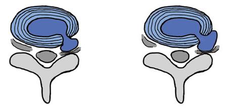 椎間孔ヘルニアについて